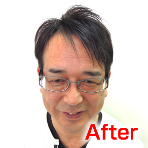 katura-after1