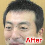 katura-after2
