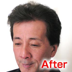 katura-after3