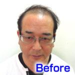katura-before1