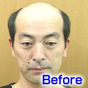 katura-before2
