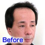katura-before3